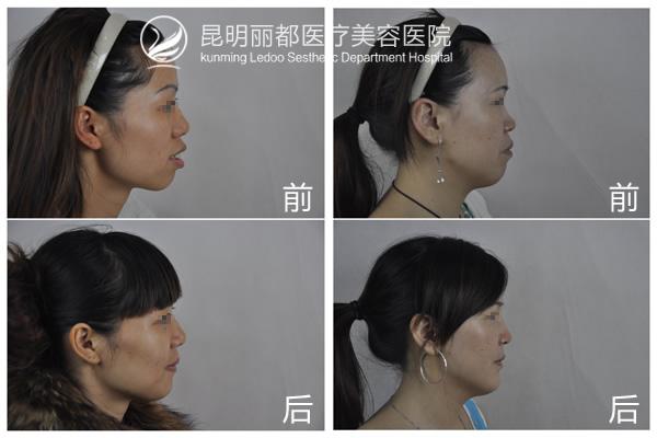 昆明丽都成功实施云南首例口腔正颌手术